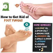 best 25 athletes foot cure ideas on pinterest soak feet dry