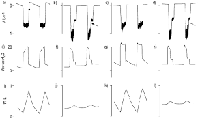 leak compensation in positive pressure ventilators a lung model