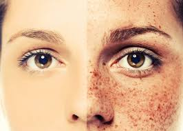 the difference between freckles and melasma