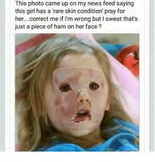 Funny Girl Face Meme - this photo came up on my news feed saying this girl has a rare