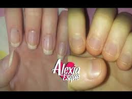 how to stop biting your nails break the habit once and for all
