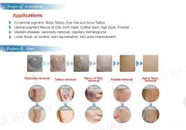 newest high quality q switched nd yag laser tattoo removal