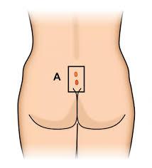pilonidal cyst location pilonidal disease ascrs