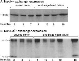 sarcolemmal na h exchanger activity and expression in human