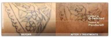 tattoo removal philadelphia pa bucks county tattoo removal