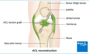 Sho Acl acl reconstruction best hospitals doctors cost in india medgurus
