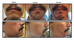 hair plugs for men facial hair transplant restoration and implants surgery for men