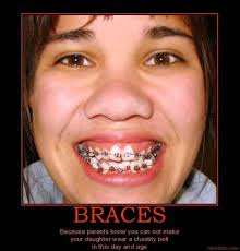 Braces Meme - braces puns