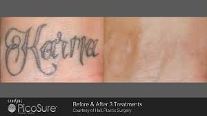 parkes general practice ph 02 6862 66 68 picosure tattoo removal