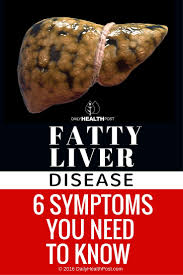 What Does Light Colored Stool Mean Fatty Liver Disease 6 Symptoms You Need To Know