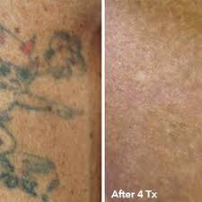 7 best before u0026 after laser tattoo removal images on pinterest
