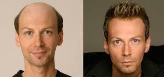 men hair weave pictures cincinnati hair loss men women hair loss solutions allusions