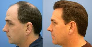 hair plugs for men this is what you need to know about fue hair transplant