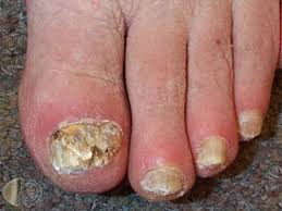 what are the common nail conditions discolouration of nails
