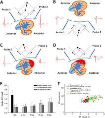 improvement of surface ecg recording in zebrafish reveals