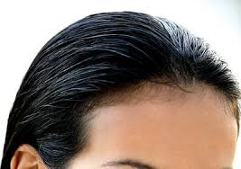 hair style wo comen receding how to regrow hair on a receding hairline livestrong com