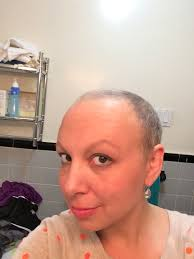 after chemo my bs have big c