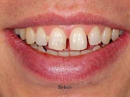 vire teeth before after tooth gaps