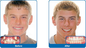 damon braces dr jonathan orthodontics