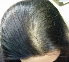 the hair centre hair loss blog