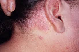 light treatment for scalp psoriasis everyday living with common scalp psoriasis