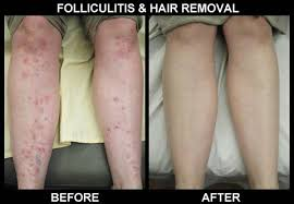 how much does laser hair removal cost on back laser hair treatment cost in india trendy hairstyles in the usa