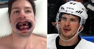 Missing Teeth Meme - hockey teeth meme teeth best of the funny meme