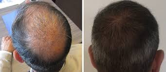 images of hair hair transplant cost abroad consultation dublin belfast