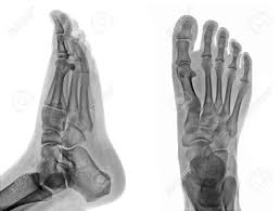Anatomy Of A Foot Foot Anatomy Xray Detail Of An X Ray Of A Foot Stock Photo Picture