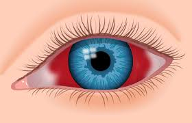 Can Lasik Cause Blindness Blood In Eye Subconjunctival Hemorrhage 4 Causes And Treatment