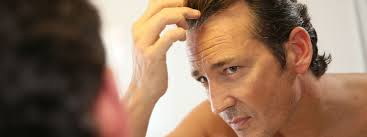 beverly hills non surgical hair loss treatment hair replacement