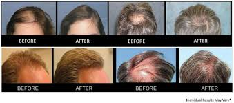 mens new hair styles elakiri community trendz advanced hair care solutions how important is hair to you
