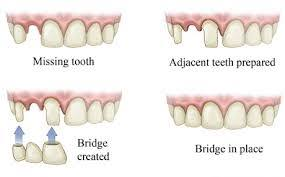 Bridge Dental Cost Estimate dental bridge cost procedures pros and cons by board certified