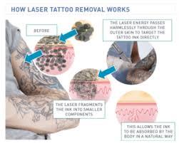 laser tattoo removal u2013 london body centre