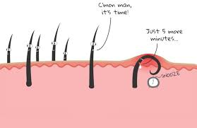 types of ingrown hair how to get rid of ingrown facial hair causes prevention and