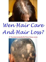early young male pubic hair growth pictures the 25 best male hair loss ideas on pinterest hair loss