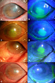 morselized amniotic membrane tissue for refractory corneal
