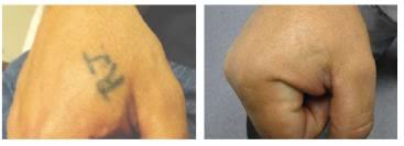 efficacy of tattoo removal with dermabra enliven archive