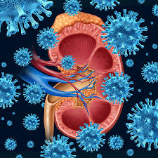 how i cured my kidney infection naturally my 5 miracle cures