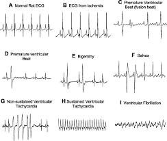 protection against ventricular arrhythmias and cardiac death using