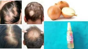 100 hair growth scientifically proven best hair loss