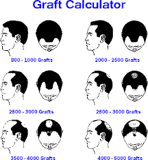 hair transplant calculator hair loss treatment for men in chandigarh india