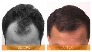 neograft recovery timeline neograft before and after pictures nashville hair doctor