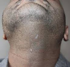 how dense should male pubic hair be how much hair can be restored by body hair transplant quora