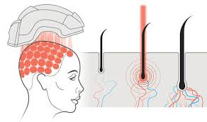 low level light therapy hair treatments low level laser therapy