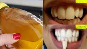 Dentist That Do Teeth Whitening Dentists Do Not Want This To Come To Light It Is The Fastest And