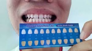 beauty union teeth whitening strips review youtube