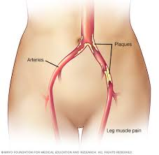 Foot Vascular Anatomy Peripheral Artery Disease Pad Symptoms And Causes Mayo Clinic