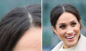 hair uk meghan markle fans furious at article highlighting grey hair