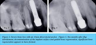 guided bone regeneration the increasing prevalence of peri implant disease